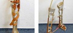 links-Prothese+Nr.xxxx-Schienenbein-Orthese-Web