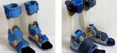 Kinder-Prothese-Web